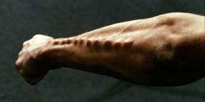 body-implants-arm