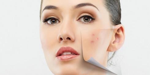 acne face girl skin