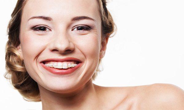 Girl teeth in braces