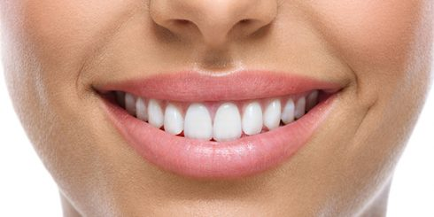 dental implants whitened smile