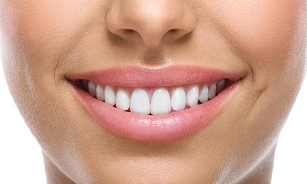 dental implants teeth whitened